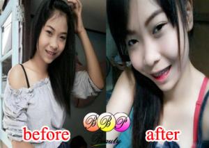 รีวิวสินค้า-bbp-beauty-10-300x213